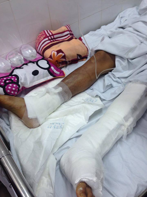 my-left-foot-surgeons-at-major-vietnam-hospital-operate-on-patients-wrong-leg