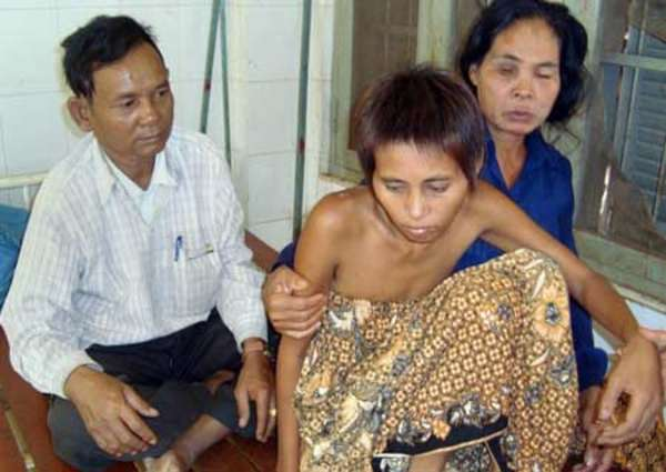 Cambodias jungle woman, Rochom Pngieng, sitting with help from her parents at a hospital in Ratanakiri province, some 610 kilometers northeast of Phnom Penh. Photo by AFP