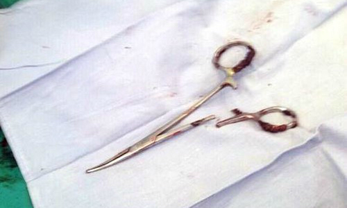 Vietnamese doctors recover forgotten scissors from abdomen after 18 years