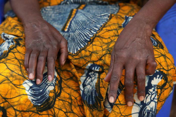despite-murderous-attacks-tanzanias-witches-fight-for-land