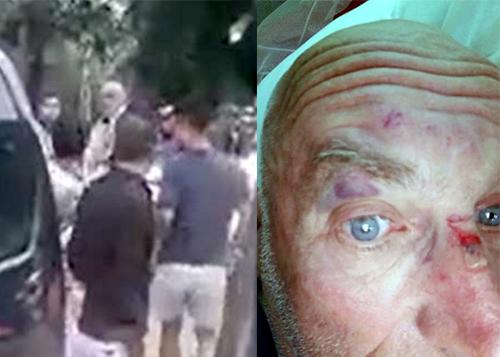 Foreigner beaten by five men after minor road accident in popular Vietnam resort town