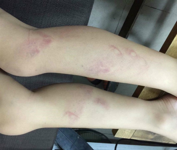 hanoi-raises-alert-after-teacher-beats-primary-school-students-for-being-late