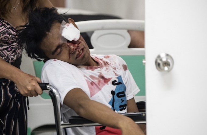 A man injured by firecrackers is being taken care of at the Jose Reyes Memorial Medical Center in Manila early on January 1, 2018, after new years celebrations. The Philippines is mainly Roman Catholic but the celebrations draw on ancient superstitions and Chinese traditions in which the noise from firecrackers is meant to drive away evil spirits and bring good luck in the coming year. Adding to the danger of annual fireworks celebrations in the streets, there are over 1.2 million unlicensed firearms in the Philippines and some of those are used in the festivities. Photo by AFP/Noel Celis