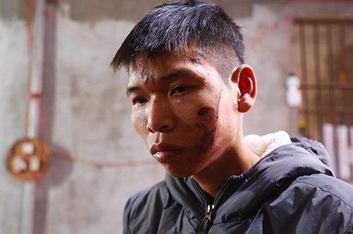 Survivors of Vietnam's scrap blast recall 'rain of bullets'