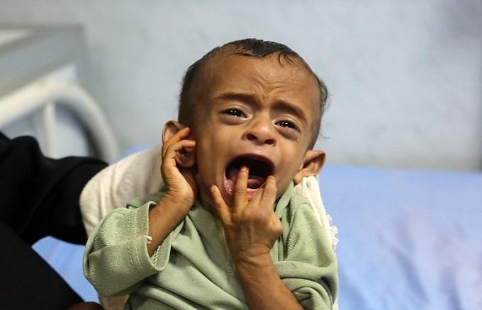 5,000 children killed or injured in Yemen war: UN