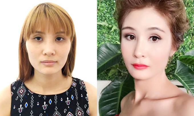 26-year-old Hanoian Ngoc: before (L) and after (R) cheekbones reduction surgery. Photo courtesy of Ngoc.