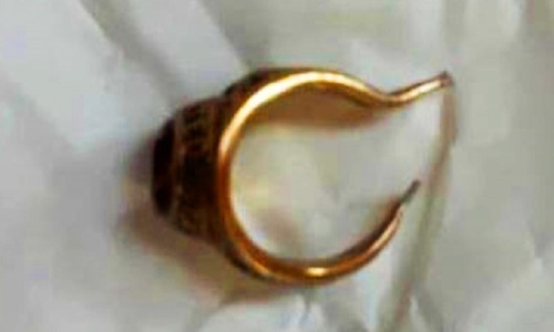 Gold ring removed from man's penis in southern Vietnam