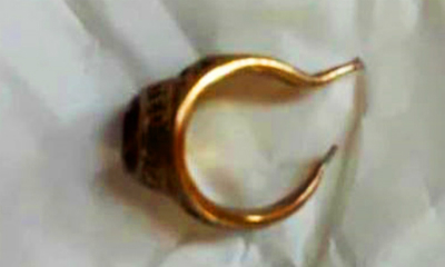 The gold ring removed from a mans penis in Tien Giang General Hospital. Photo acquired by VnExpress