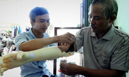 Vietnam university student creates super cheap prosthetic arm