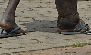 Vietnam has gotten rid of elephantiasis: WHO