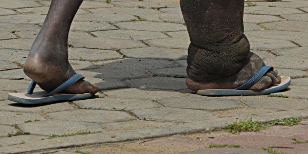 Vietnam has gotten rid of elephantiasis: WHO