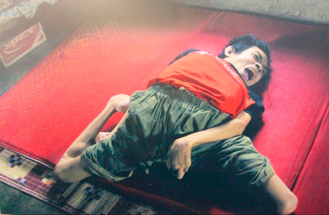 Hue exhibition shows USs deadly Agent Orange legacy