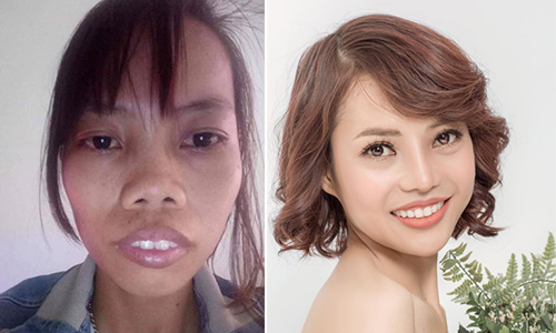 Duyen before and after the plastics surgery