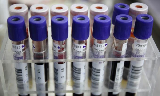 China says tests of human immunoglobulin are HIV negative