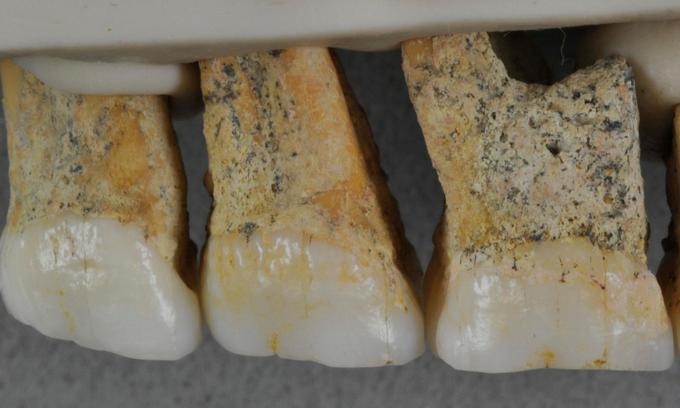 Fossils of enigmatic extinct human species found on Philippine island