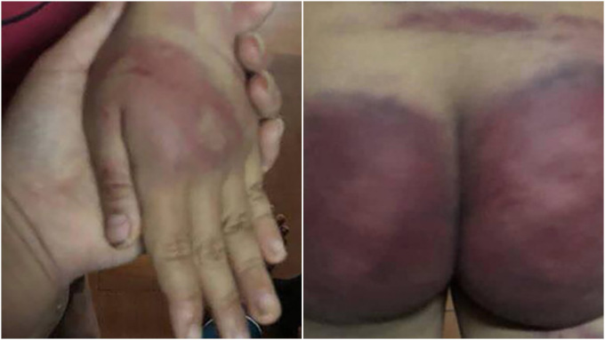 Nhung carries bruises on her hand and buttocks, from her fathers beating. Photos by VnExpress/Lam Son