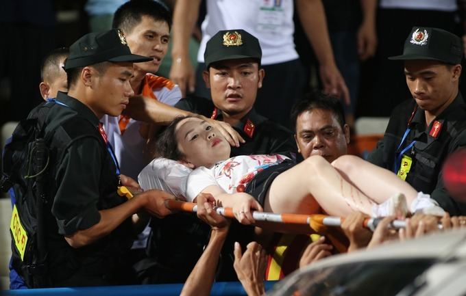 Security quickly took Huyen Anh to the hospital. The result showed that she has suffered a sulfuric burn and it even got to her bone. She might have to take two surgeries.The game was stopped over 10 minutes because of the incident. The main referee Ngo Duy Lan had to talk to the league organizers before deciding to continue the match or not.