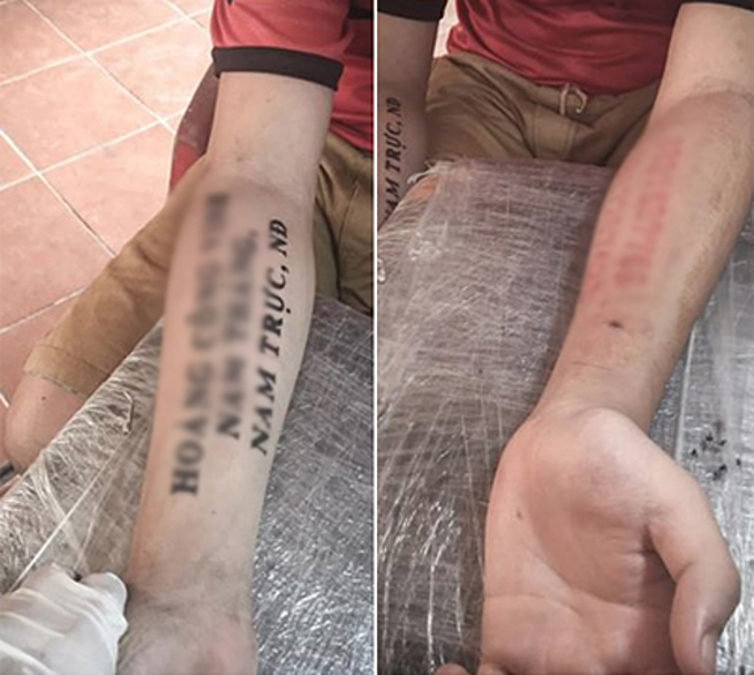 Hoang Cong Vinh has his name and home address tattooed on the right arm and his parents phone numbers on the left. Photos by VnExpress/Duc Thanh.