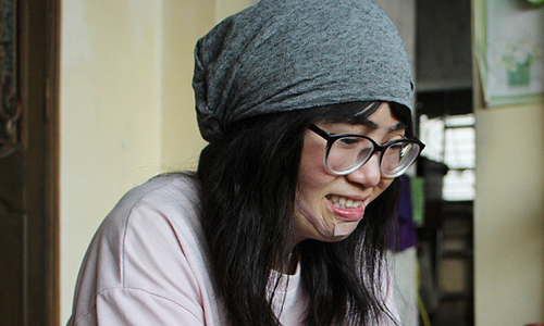 Acid attack sees Hanoi teacher rise from the ashes