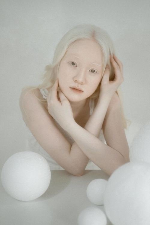Currently a senior at the University of Social Sciences and Humanities in Hanoi, Ngo Thuy Quynh, 22, has dealt with albinism since birth.