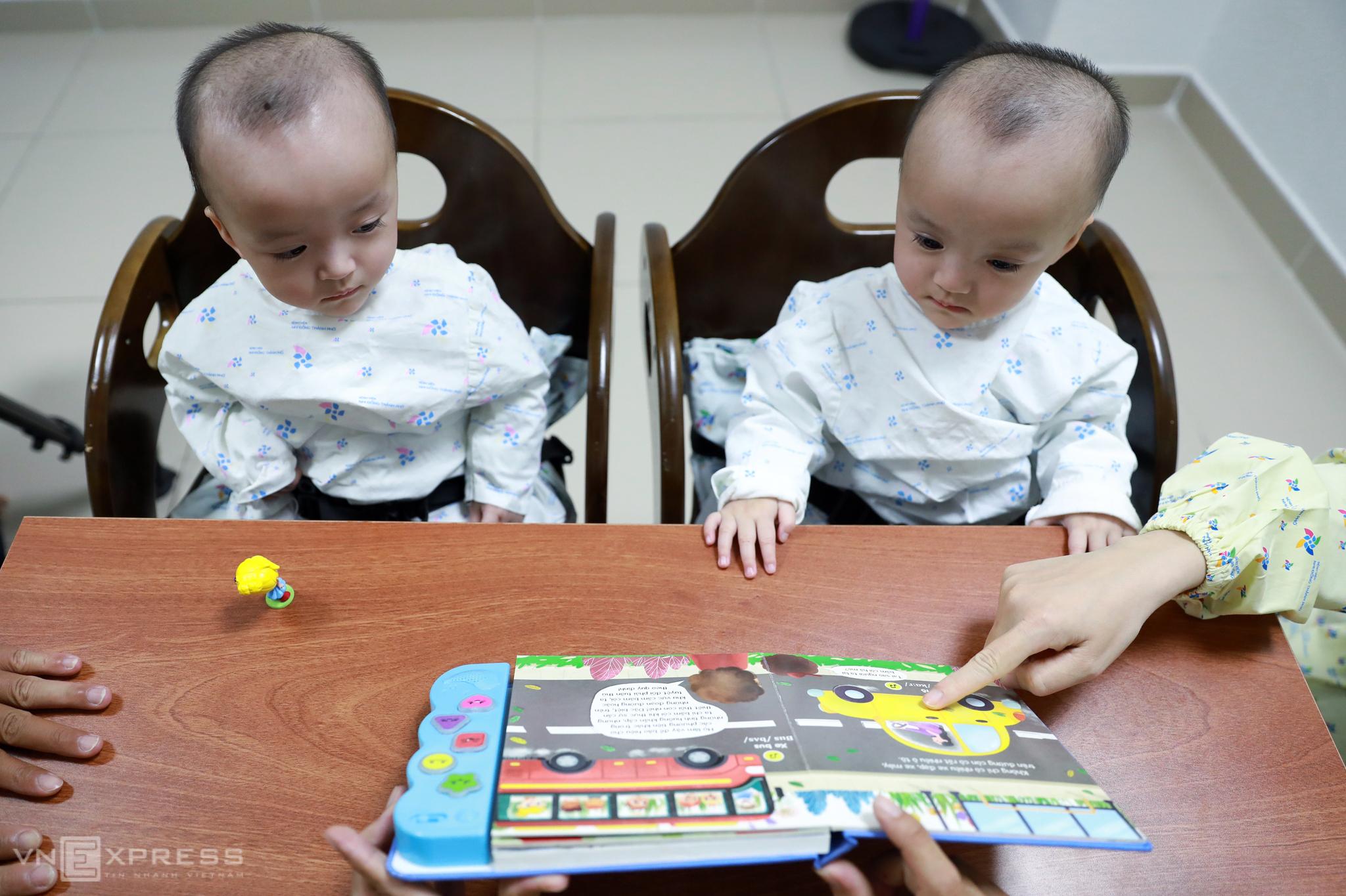Conjoined twins embrace split life