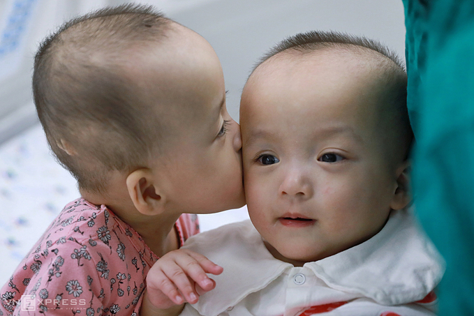Dieu Nhi kisses her sister inside HCMC Childrens Hospital in October 2020, two months after successful separation. Photo by VnExpress/Huu Khoa.